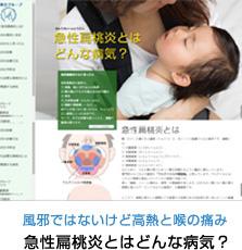 急性扁桃炎とはどんな病気?