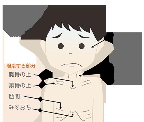 呼吸器感染症(RSウイルス、ヒトメタニューモウイルス) | こどもの ...
